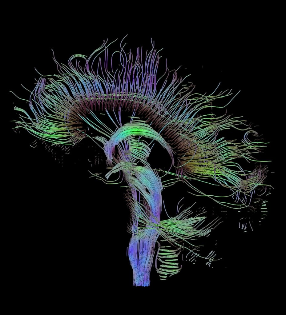 White matter paths connecting grey matter in the brain, as mapped by a diffusion tensor imaging MRI. Photo courtesy of Wikimedia Commons.